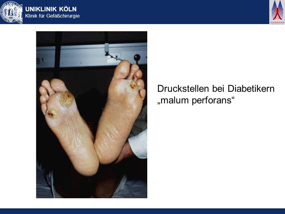 Druckstellen bei Diabetikern