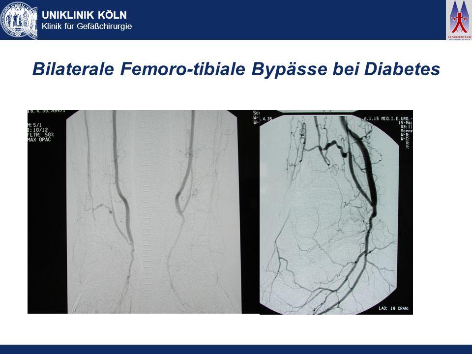Bilaterale Femoro-tibiale Bypässe bei Diabetes