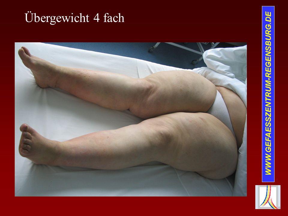 Übergewicht 4 fach WWW.GEFAESSZENTRUM-REGENSBURG.DE