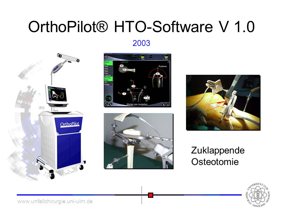OrthoPilot® HTO-Software V 1.0