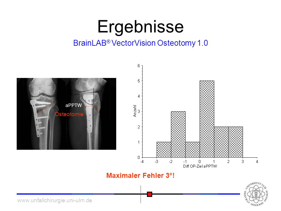 BrainLAB® VectorVision Osteotomy 1.0