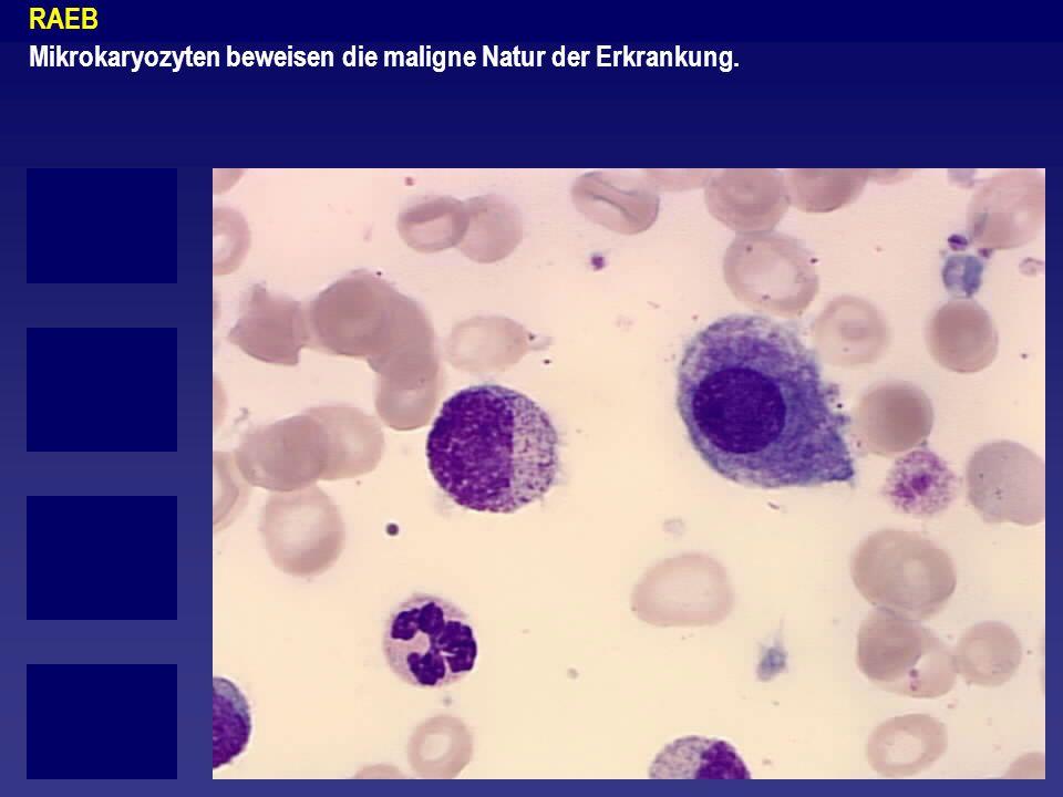 RAEB Mikrokaryozyten beweisen die maligne Natur der Erkrankung.