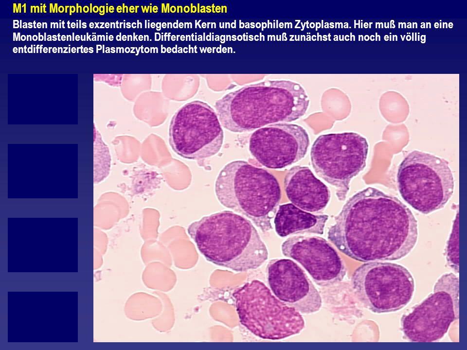 M1 mit Morphologie eher wie Monoblasten