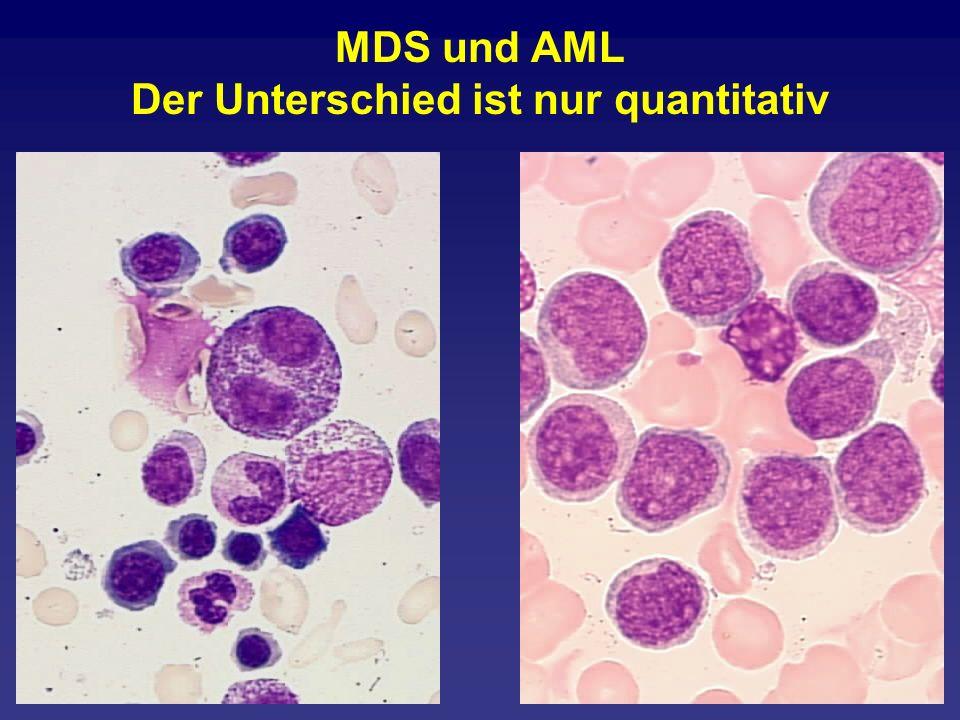 MDS und AML Der Unterschied ist nur quantitativ