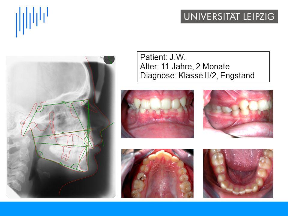 Patient: J.W. Alter: 11 Jahre, 2 Monate Diagnose: Klasse II/2, Engstand