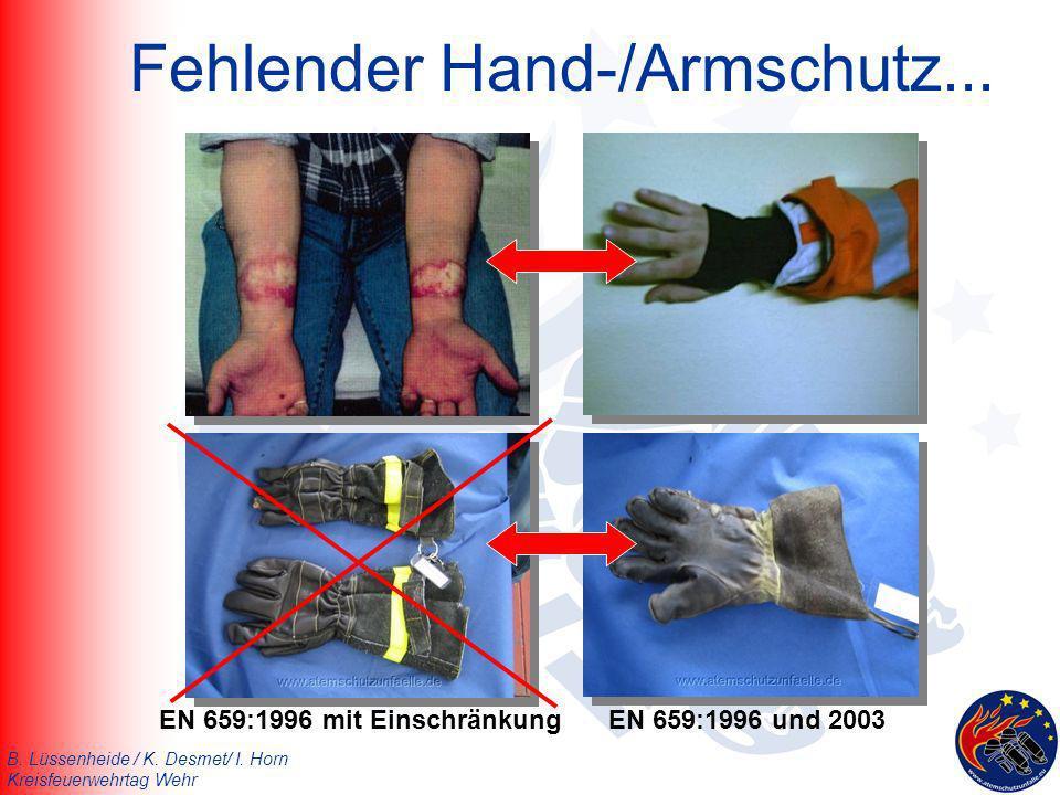 Fehlender Hand-/Armschutz...