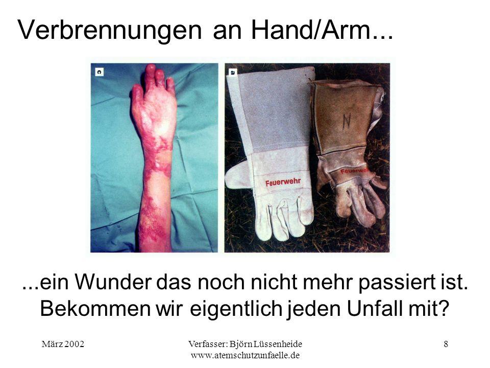 Verbrennungen an Hand/Arm...
