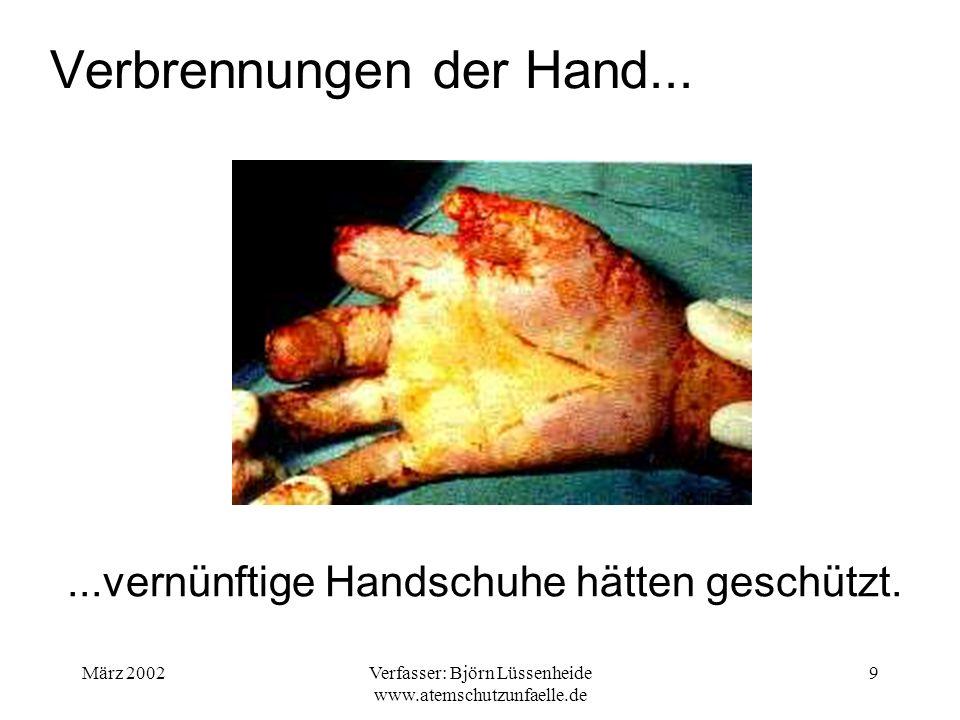 Verbrennungen der Hand...