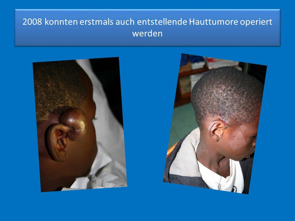 2008 konnten erstmals auch entstellende Hauttumore operiert werden