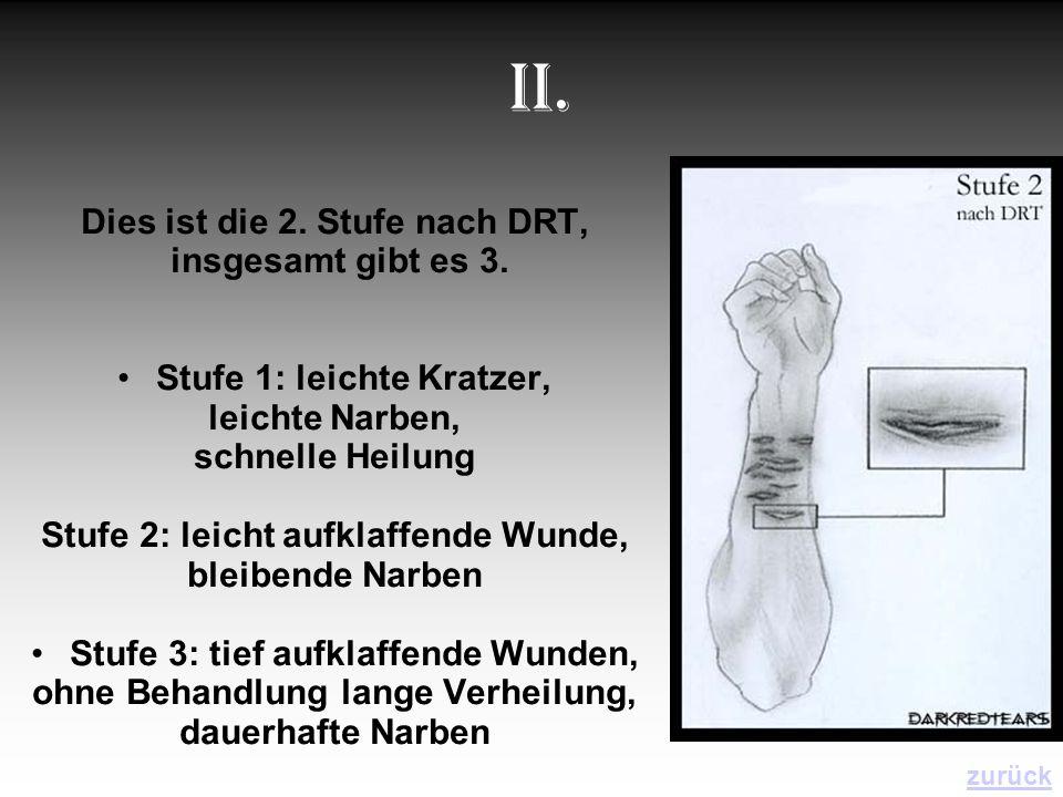 II. Dies ist die 2. Stufe nach DRT, insgesamt gibt es 3.