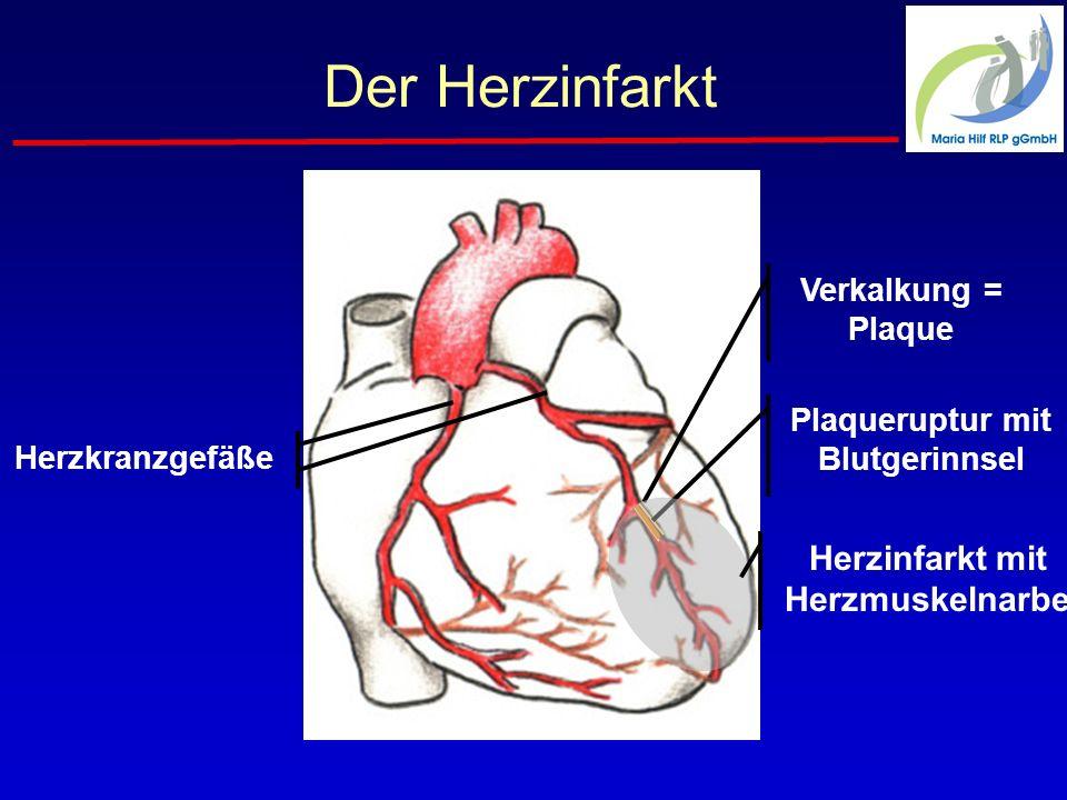 Plaqueruptur mit Blutgerinnsel Herzinfarkt mit Herzmuskelnarbe