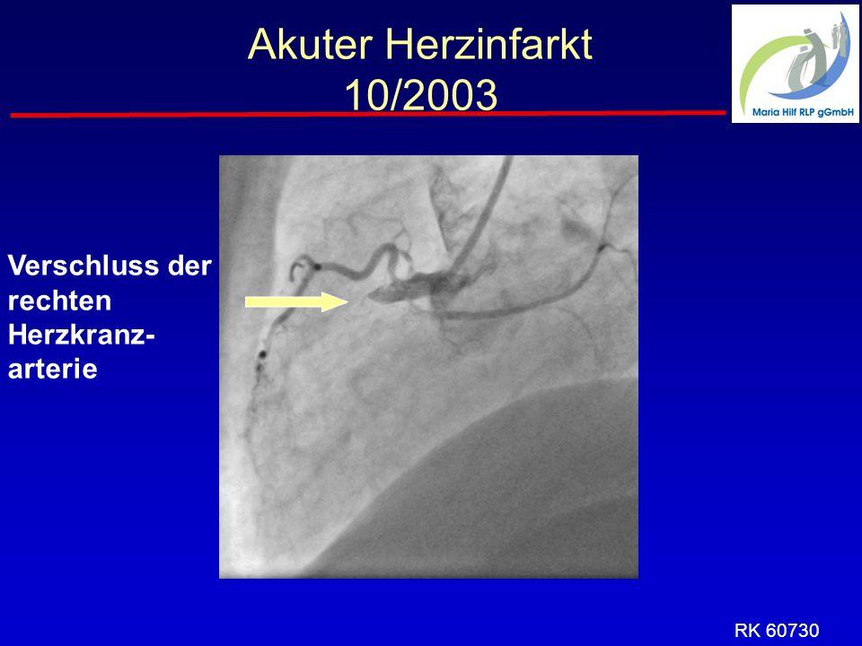 Akuter Herzinfarkt 10/2003 Verschluss der rechten Herzkranz-arterie