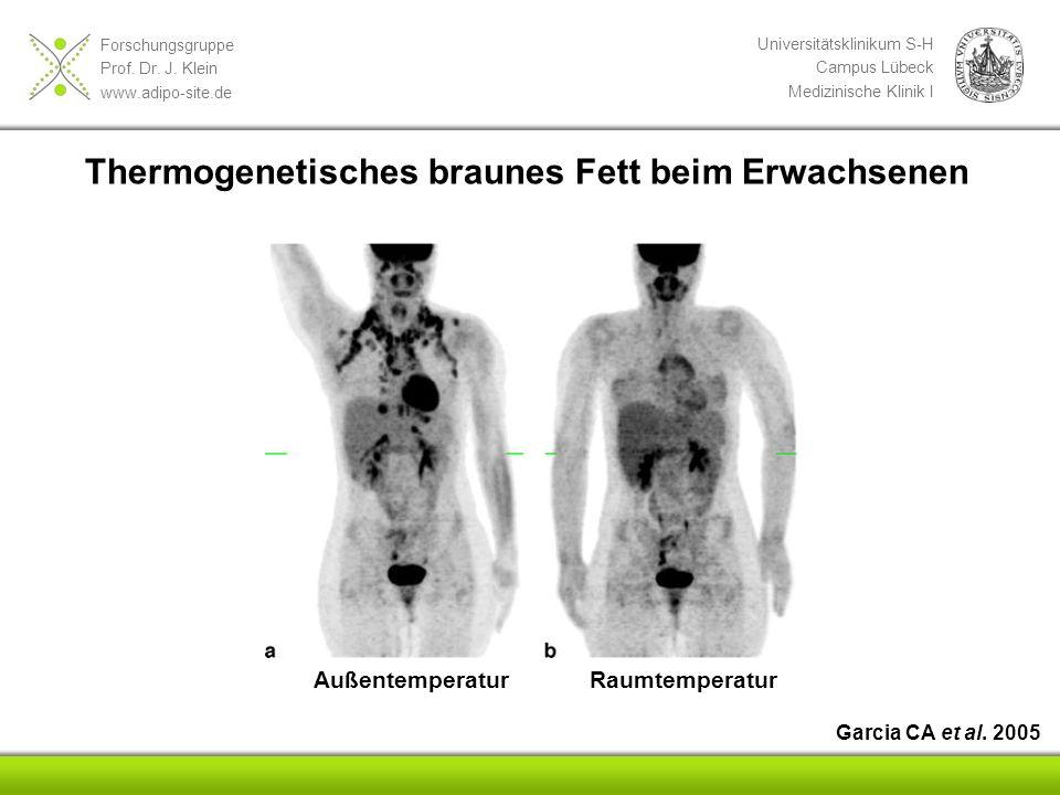 Thermogenetisches braunes Fett beim Erwachsenen