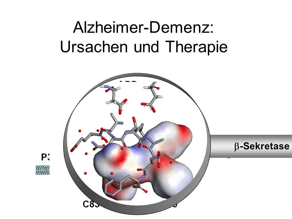 Alzheimer-Demenz: Ursachen und Therapie