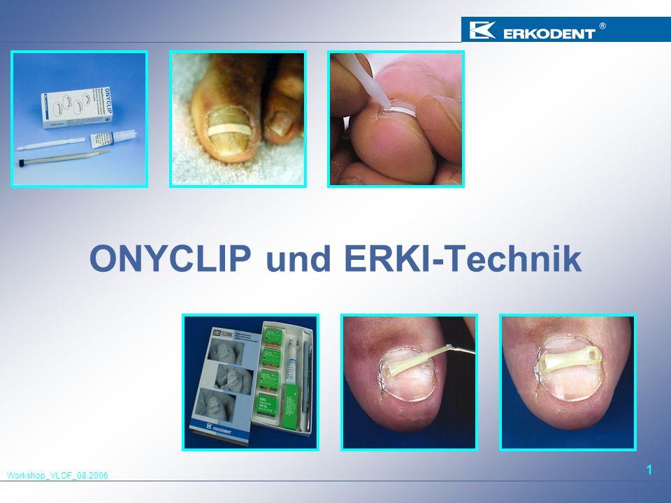 ONYCLIP und ERKI-Technik