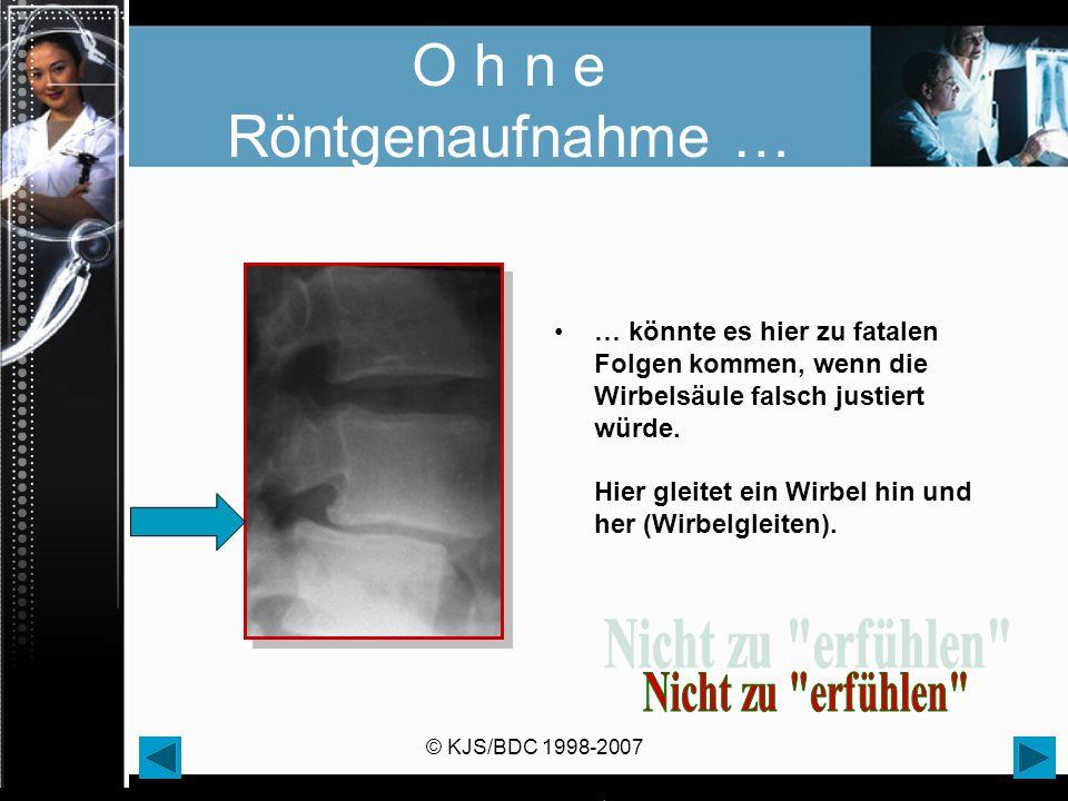 O h n e Röntgenaufnahme …