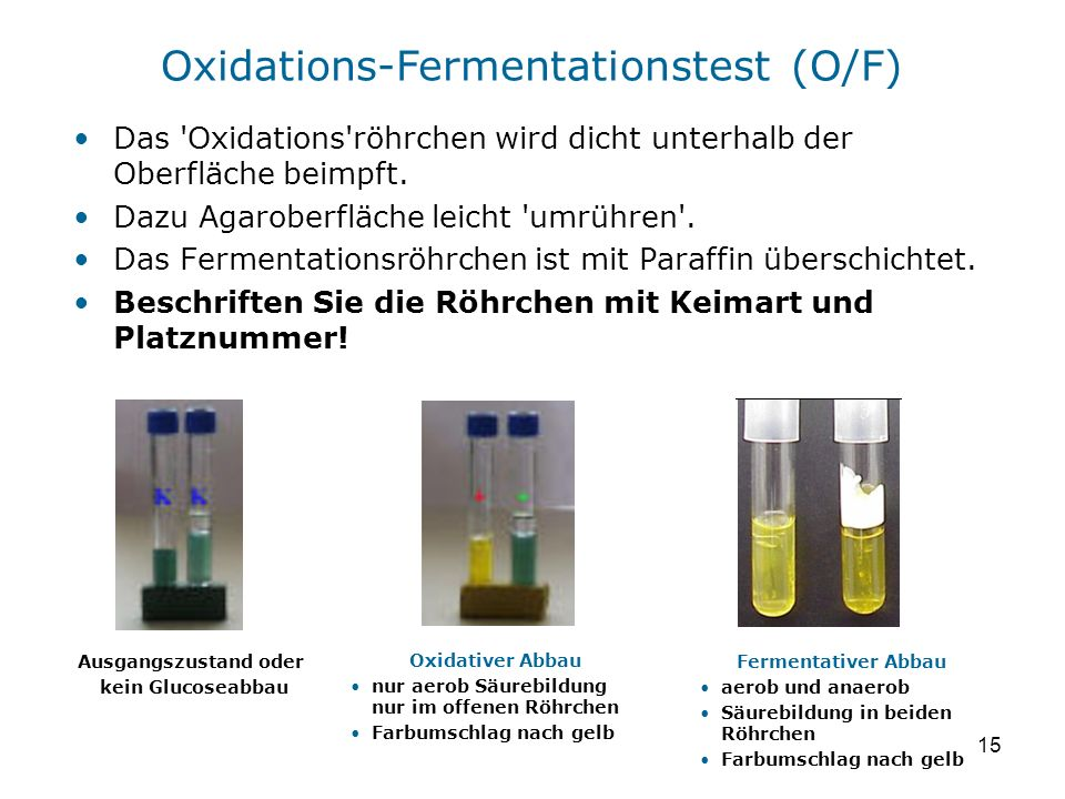 Oxidations-Fermentationstest (O/F)