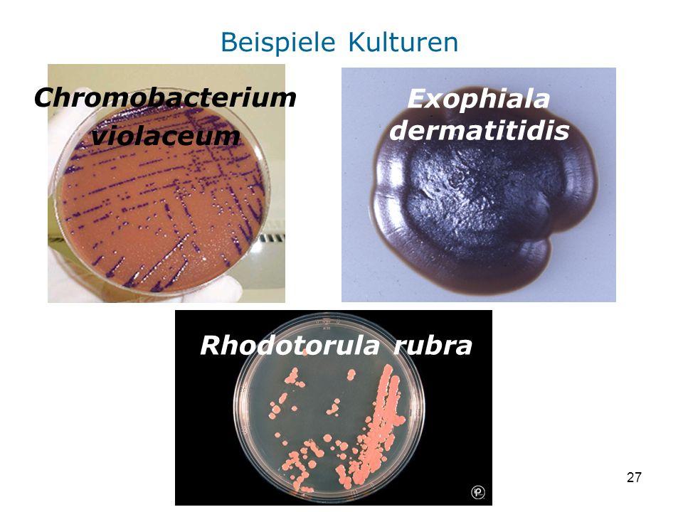 Exophiala dermatitidis