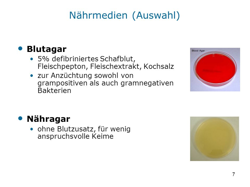 Nährmedien (Auswahl) Blutagar Nähragar
