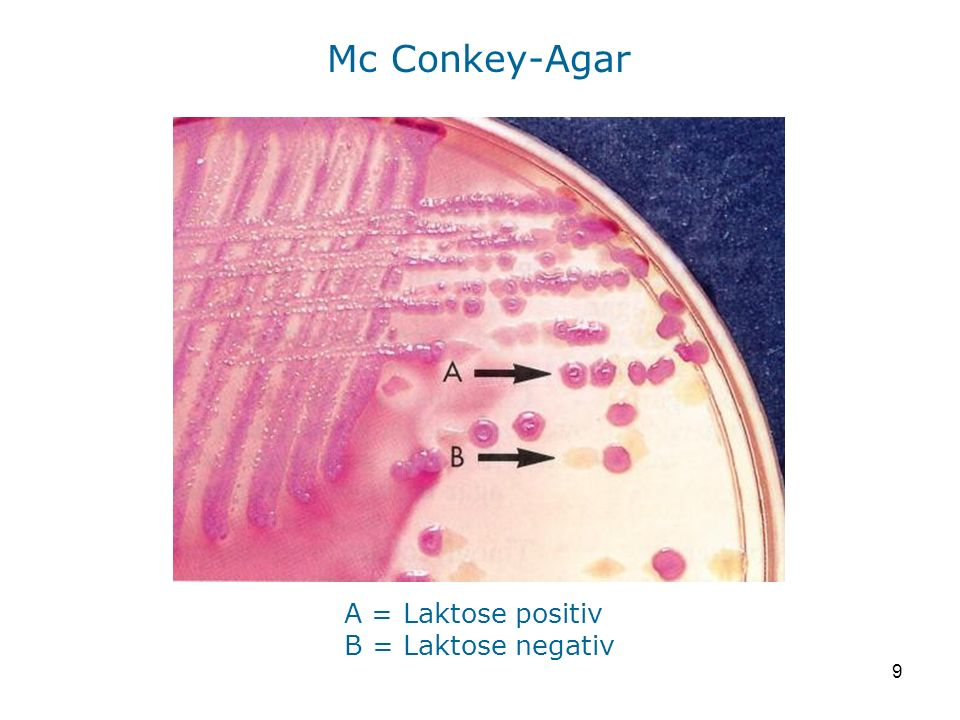 Mc Conkey-Agar A = Laktose positiv B = Laktose negativ