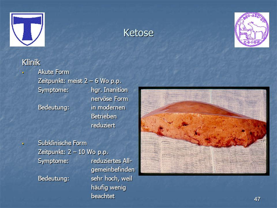 Ketose Klinik Akute Form Zeitpunkt: meist 2 – 6 Wo p.p.