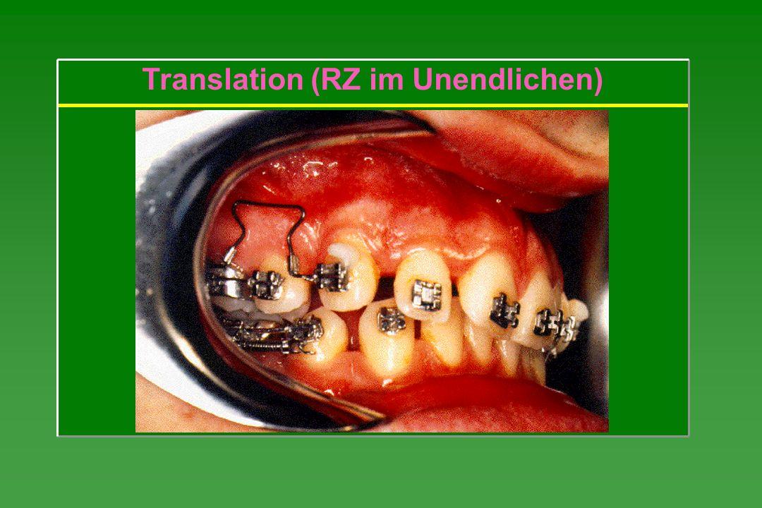 Translation (RZ im Unendlichen)
