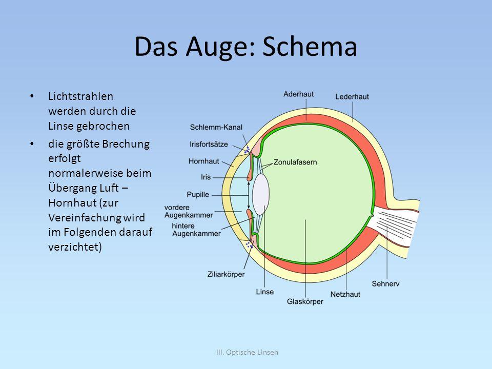 Das Auge: Schema Lichtstrahlen werden durch die Linse gebrochen