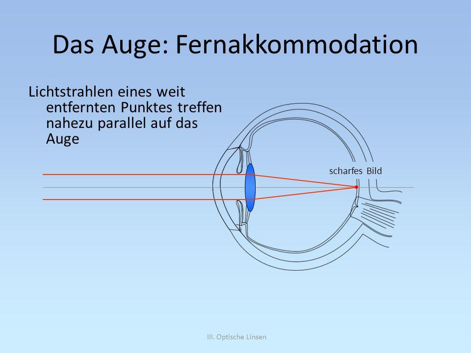 Das Auge: Fernakkommodation