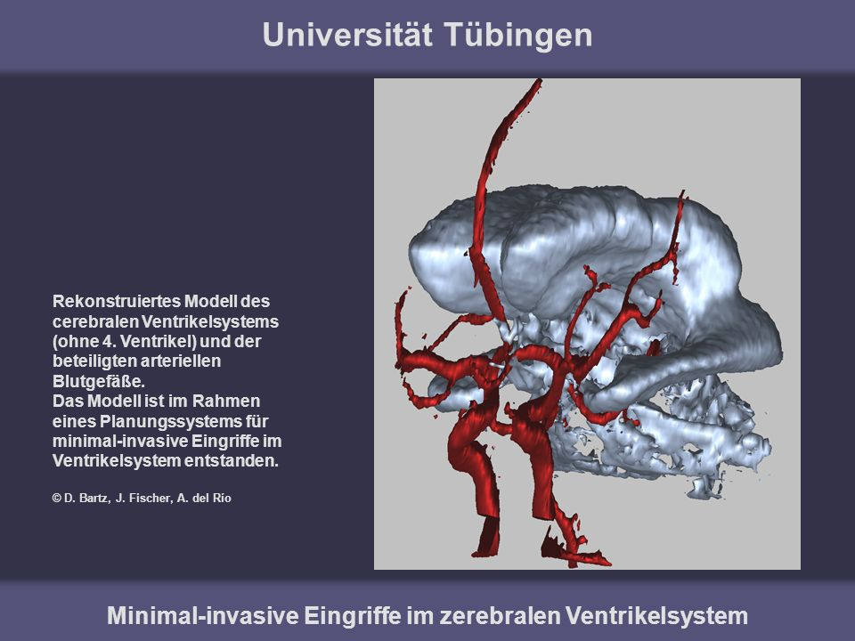 Minimal-invasive Eingriffe im zerebralen Ventrikelsystem