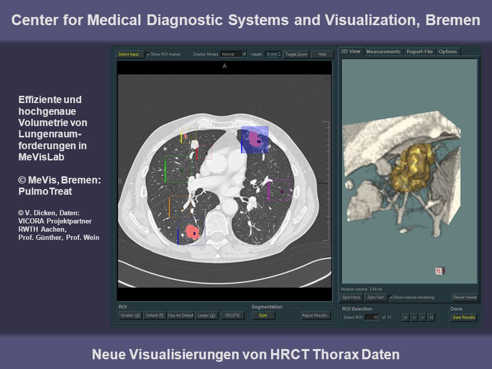 Center for Medical Diagnostic Systems and Visualization, Bremen