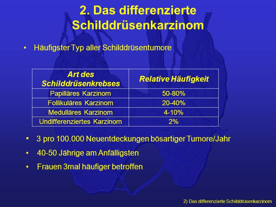 2. Das differenzierte Schilddrüsenkarzinom