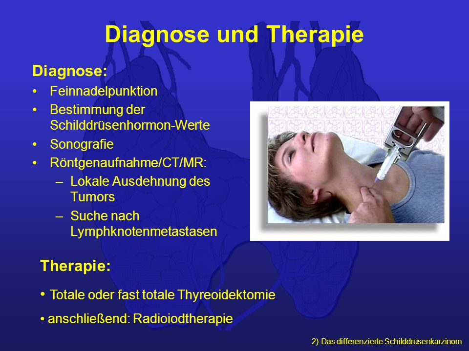 Diagnose und Therapie Diagnose: Therapie: