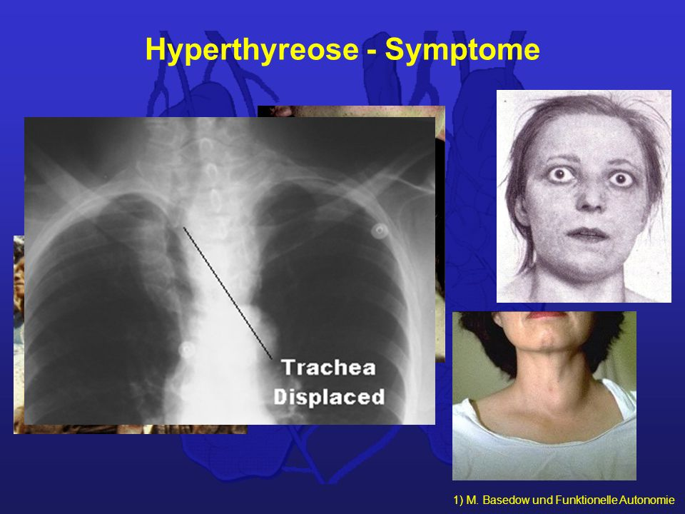 Hyperthyreose - Symptome