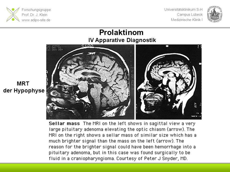 Prolaktinom IV Apparative Diagnostik MRT der Hypophyse