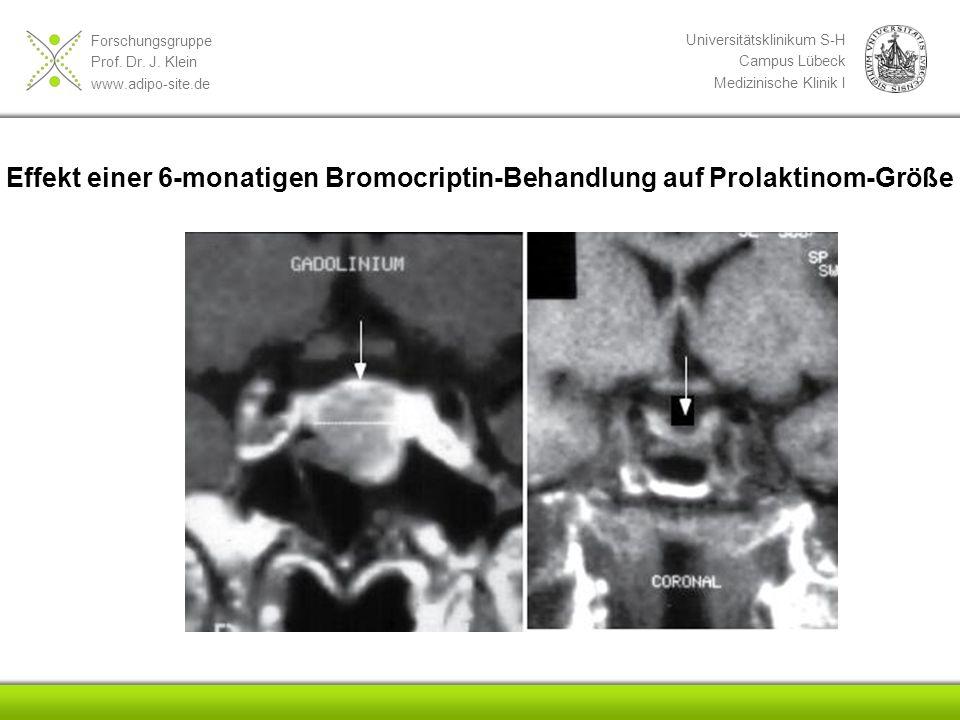 Effekt einer 6-monatigen Bromocriptin-Behandlung auf Prolaktinom-Größe