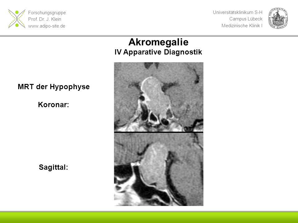 Akromegalie IV Apparative Diagnostik MRT der Hypophyse Koronar: