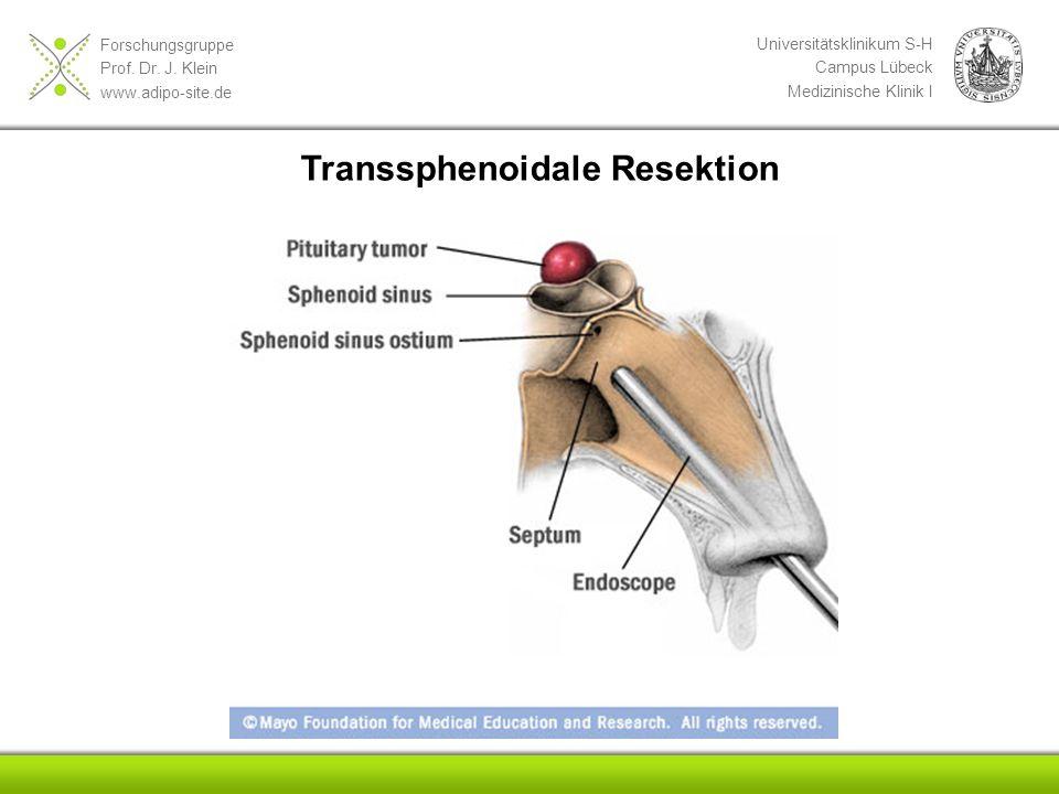 Transsphenoidale Resektion