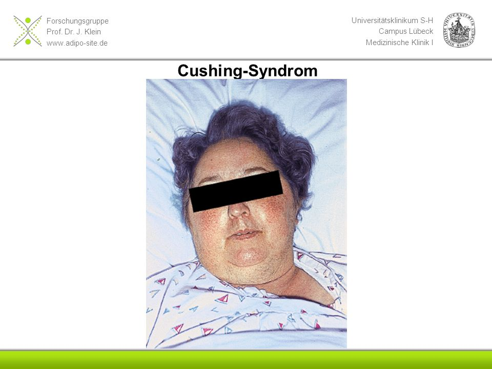 Cushing-Syndrom