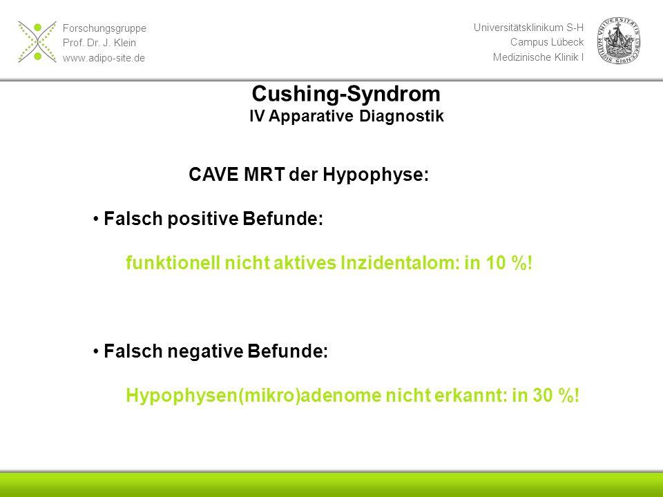 Cushing-Syndrom CAVE MRT der Hypophyse: Falsch positive Befunde: