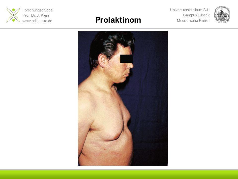 Prolaktinom