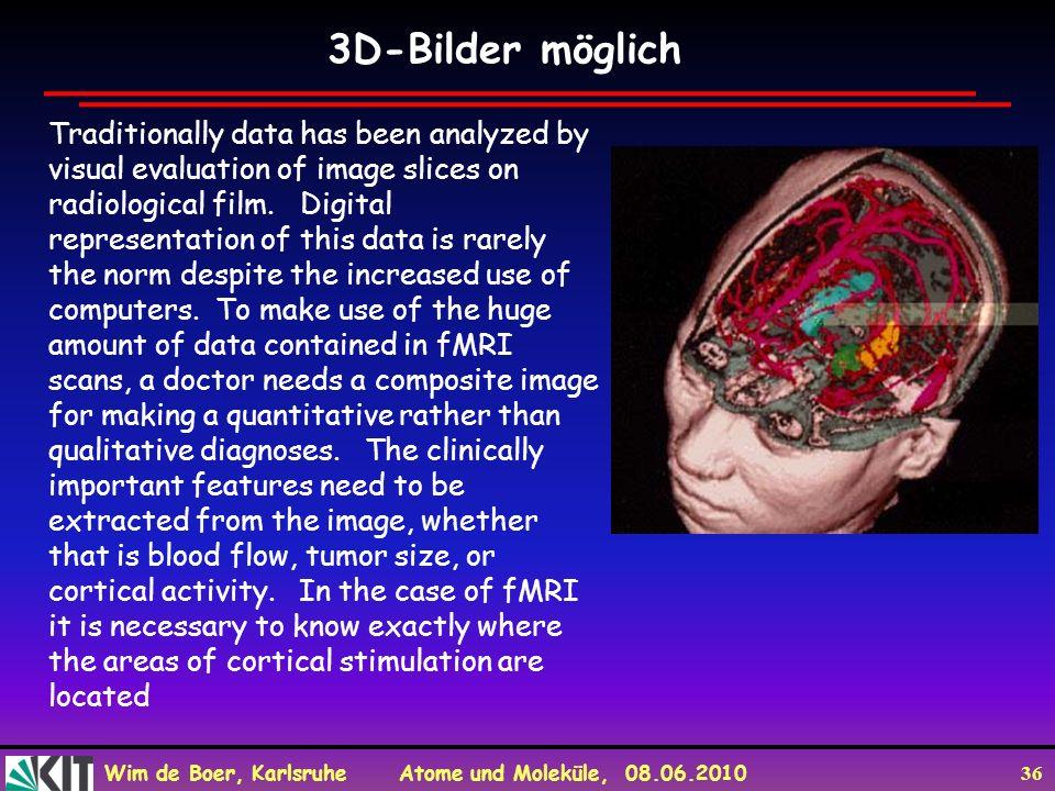 3D-Bilder möglich