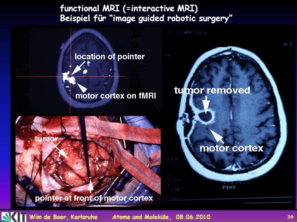 functional MRI (=interactive MRI)