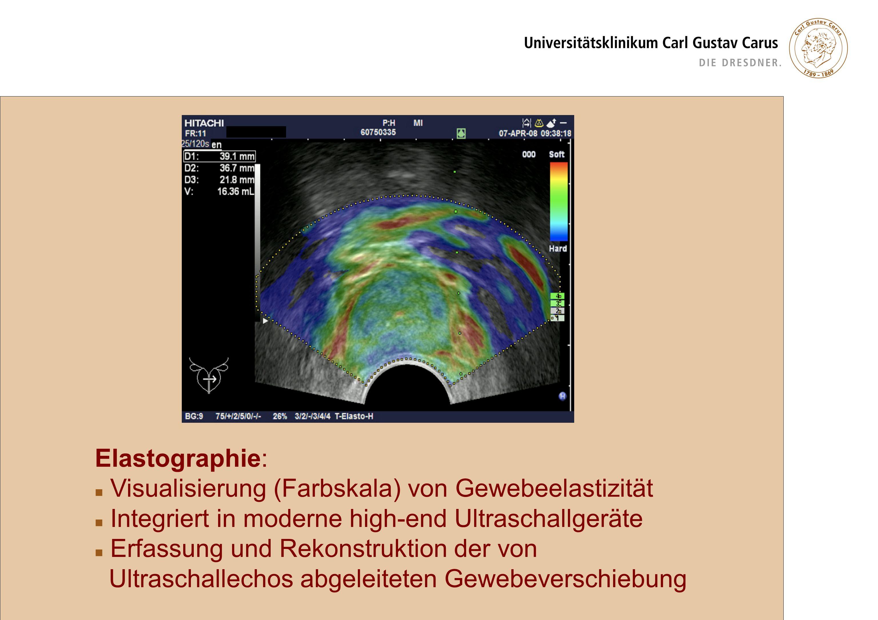 Elastographie: Visualisierung (Farbskala) von Gewebeelastizität. Integriert in moderne high-end Ultraschallgeräte.
