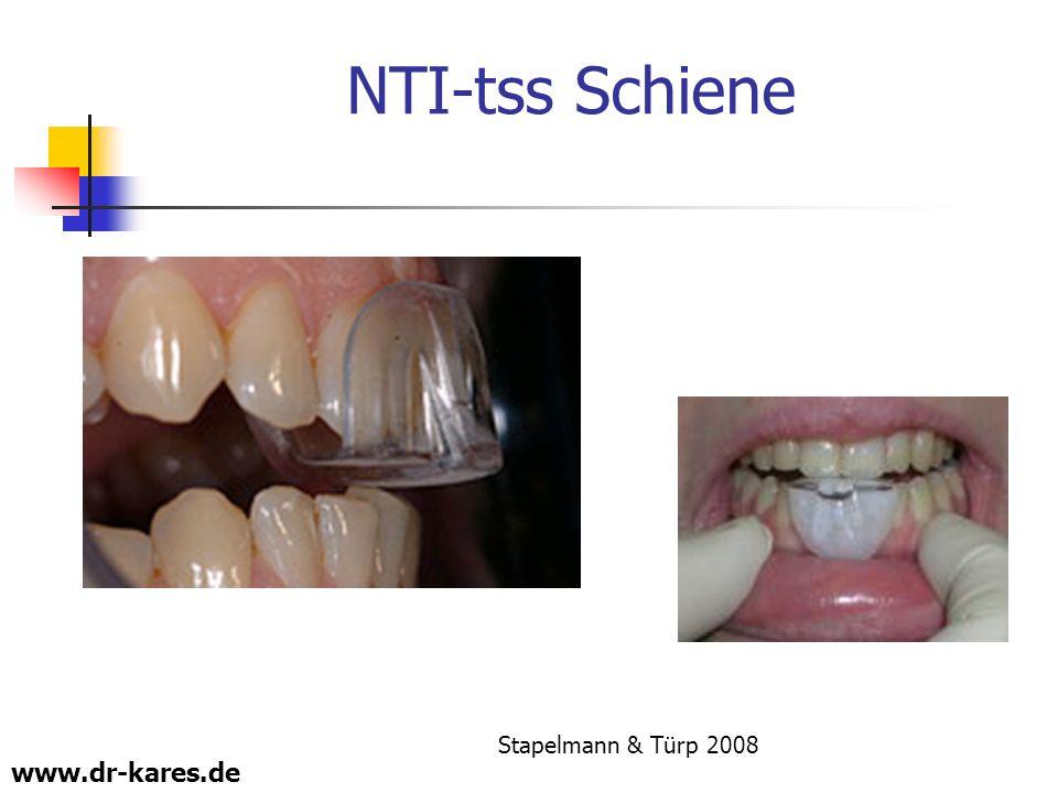 NTI-tss Schiene Stapelmann & Türp 2008