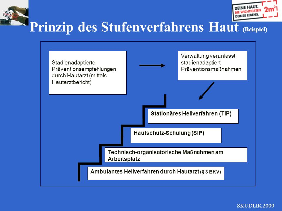 Prinzip des Stufenverfahrens Haut (Beispiel)