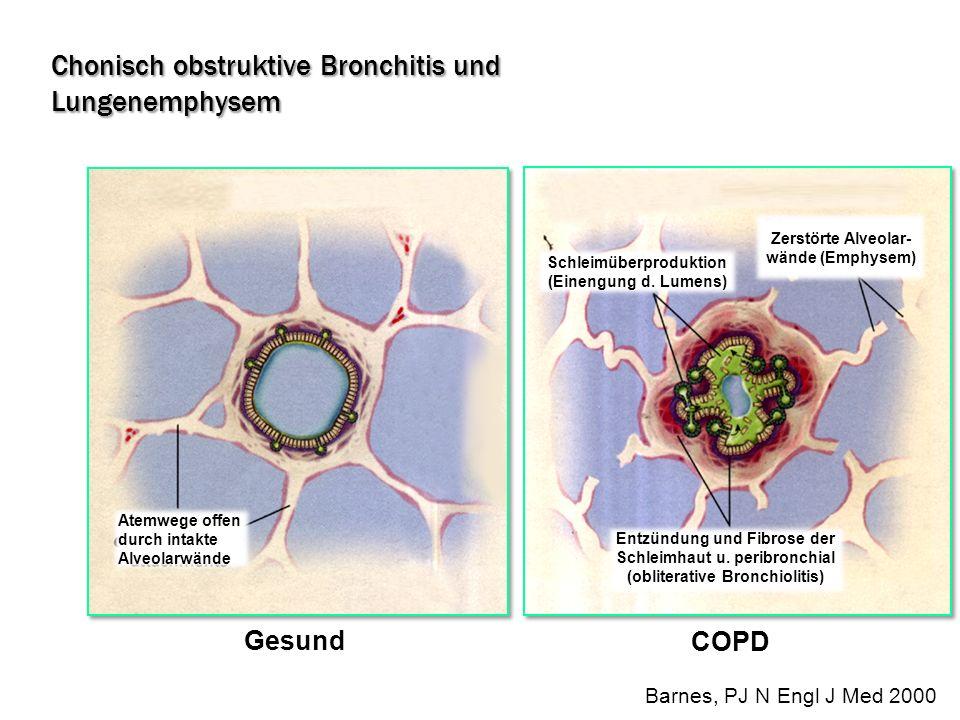 Chonisch obstruktive Bronchitis und Lungenemphysem