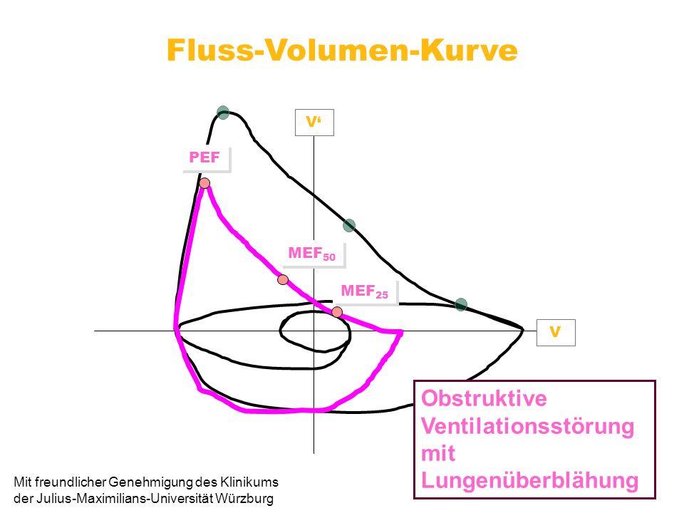 Fluss-Volumen-Kurve V. V' PEF. MEF50. MEF25. Obstruktive Ventilationsstörung mit Lungenüberblähung.