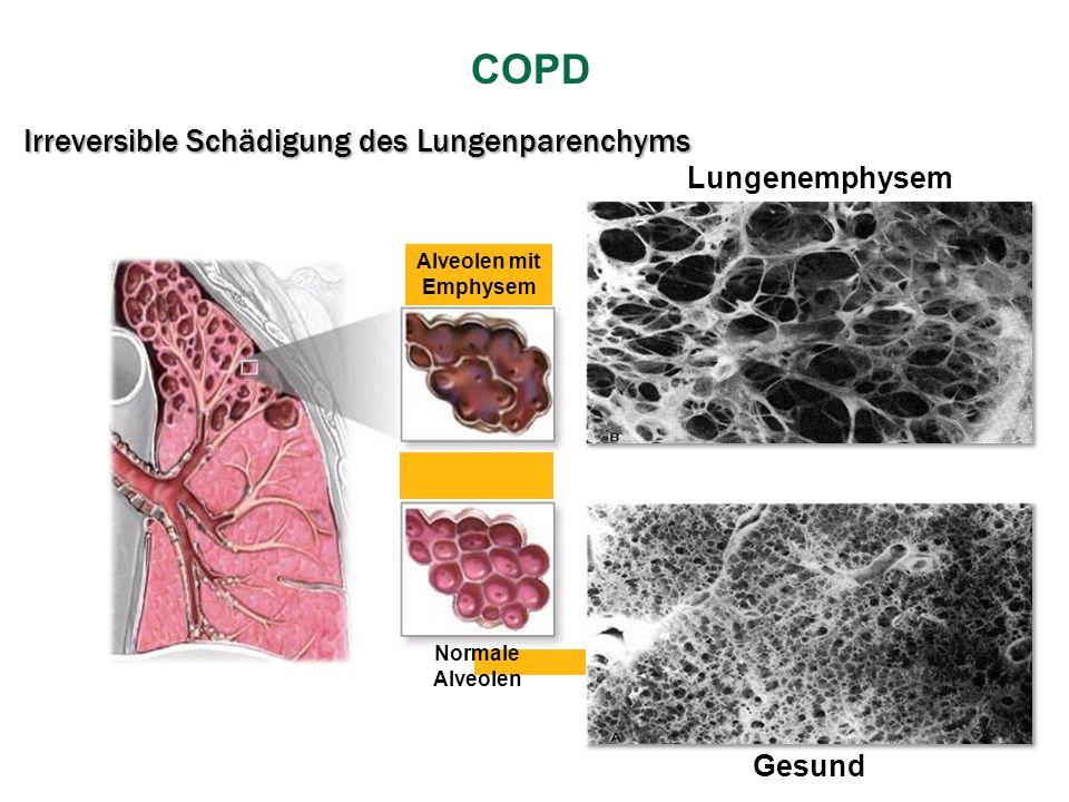 Irreversible Schädigung des Lungenparenchyms