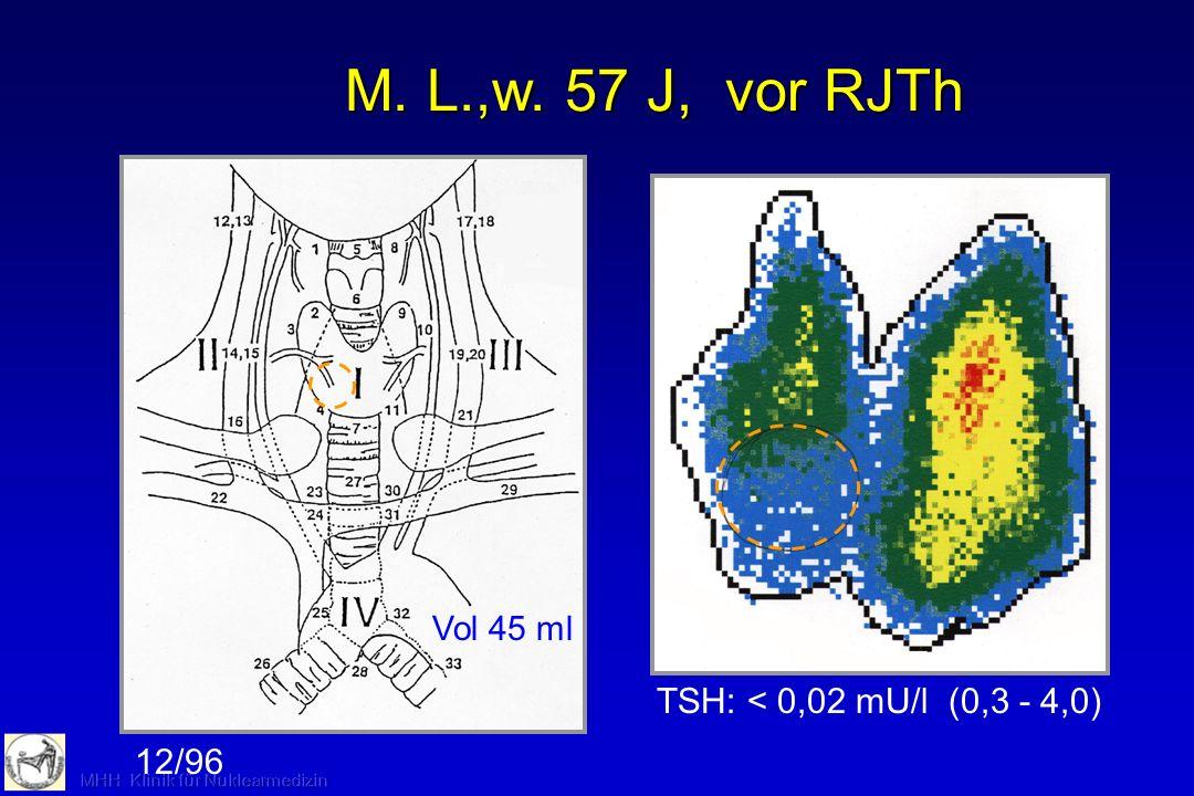 M. L.,w. 57 J, vor RJTh TSH: < 0,02 mU/l (0,3 - 4,0) 12/96
