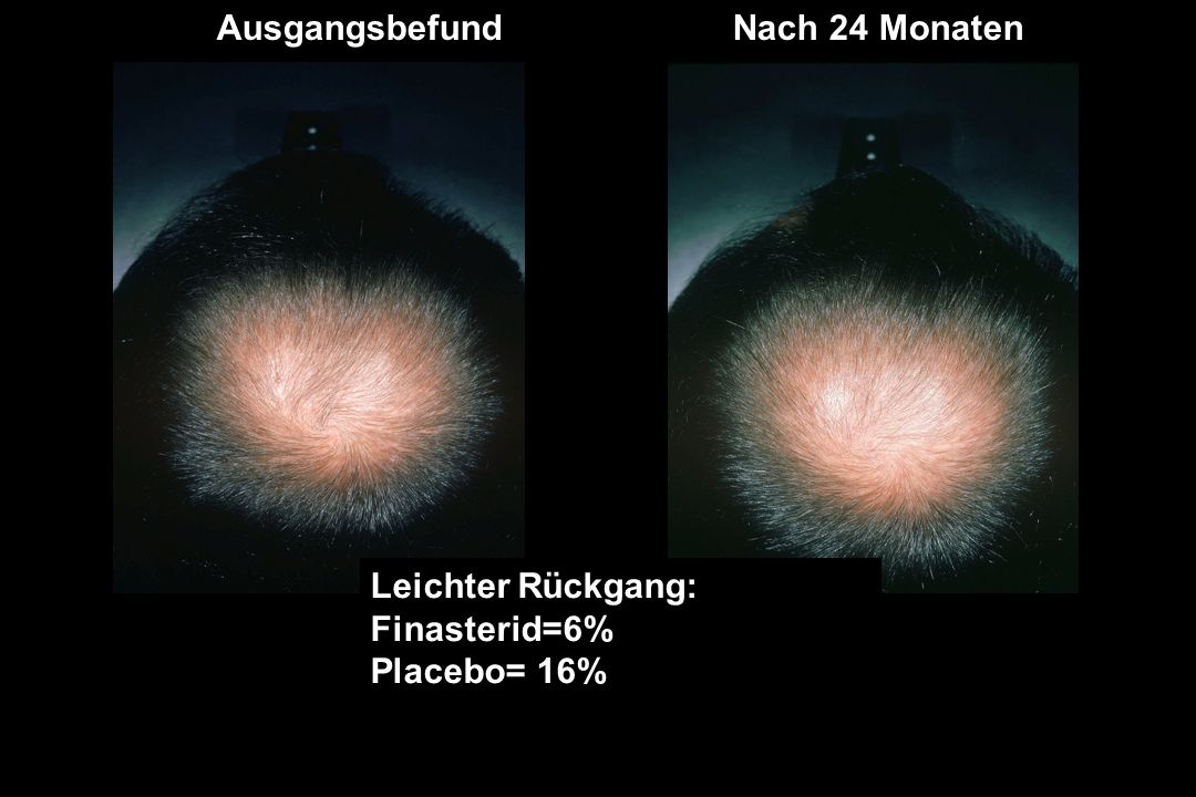 Leichter Rückgang: Finasterid=6% Placebo= 16% SLIGHT DECREASE: